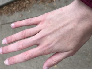 I get cold bumps on my hands :(